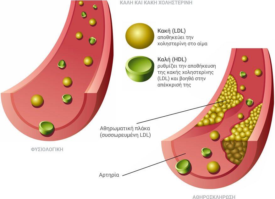 Χοληστερίνη καλή κακή
