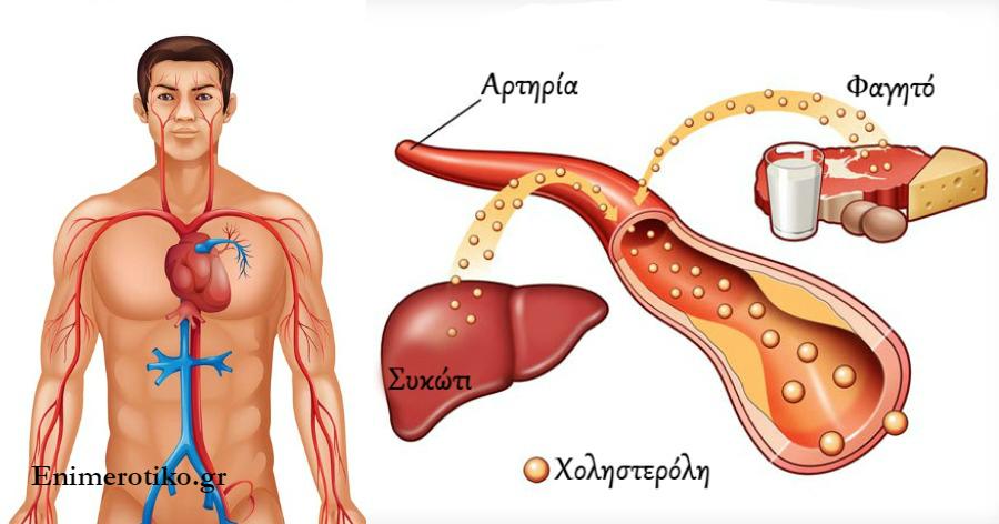 Χοληστερίνη: 10 τροφές που καθαρίζουν τις αρτηρίες από την χοληστερόλη