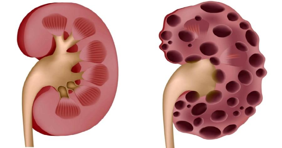 νεφρά