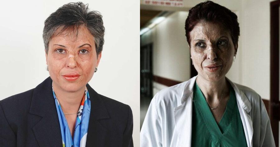 Καλλιόπη Αθανασιάδη: Η επιζήσασα ενός φριχτού ατυχήματος που έγινε η κορυφαία χειρούργος της Ελλάδας