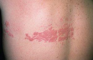 Έρπης ζωστήρας : μια σοβαρή δερματοπάθεια με σοβαρές επιπτώσεις.