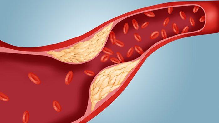Υψηλή Χοληστερόλη