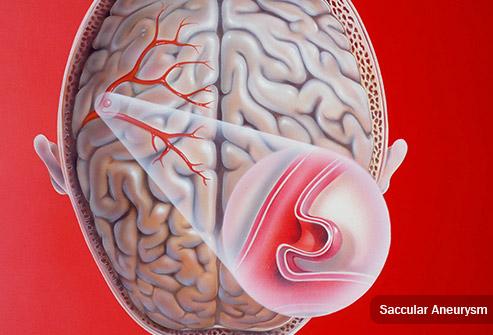 30χρονη ανεύρυσμα εγκεφάλου
