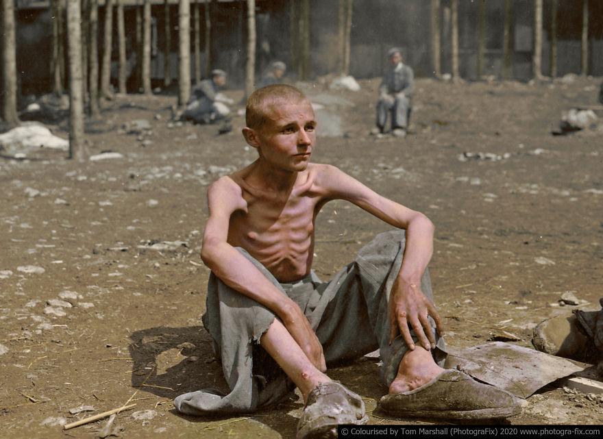 Ζωντανός σκελετός στρατόπεδο συγκέντρωσης Εβραίων