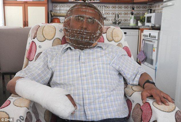 Ιστορία Τούρκου που κλείδωσε το κεφάλι του για να κόψει το κάπνισμα.