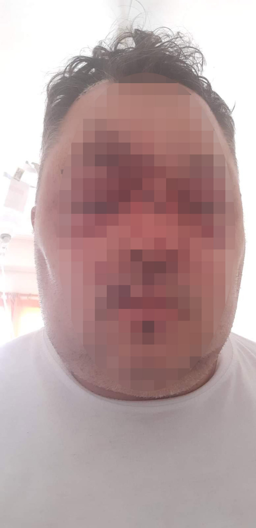 Αλβανός αγρότης έσπασε στο ξύλο Έλληνα αστυνομικό.