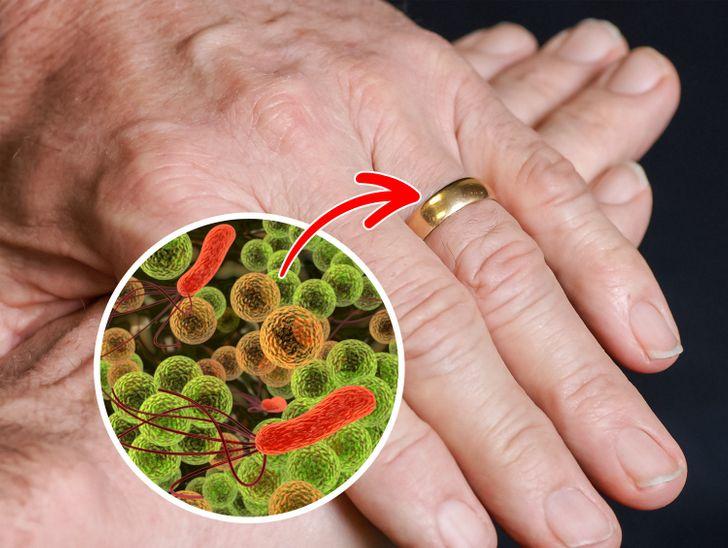 Βακτήρια από κοσμήματα