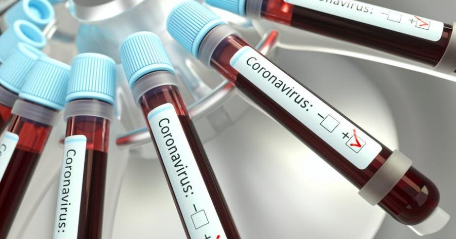 Μεταγγίσεις αίματος στον κορονοιό