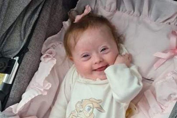Νεογέννητο κοριτσάκι επέμβαση ανοιχτής καρδιάς