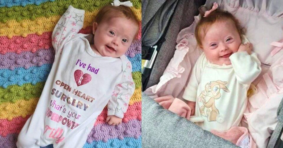 Νεογέννητο κοριτσάκι υποβλήθηκε σε ανοιχτή επέμβαση καρδιάς