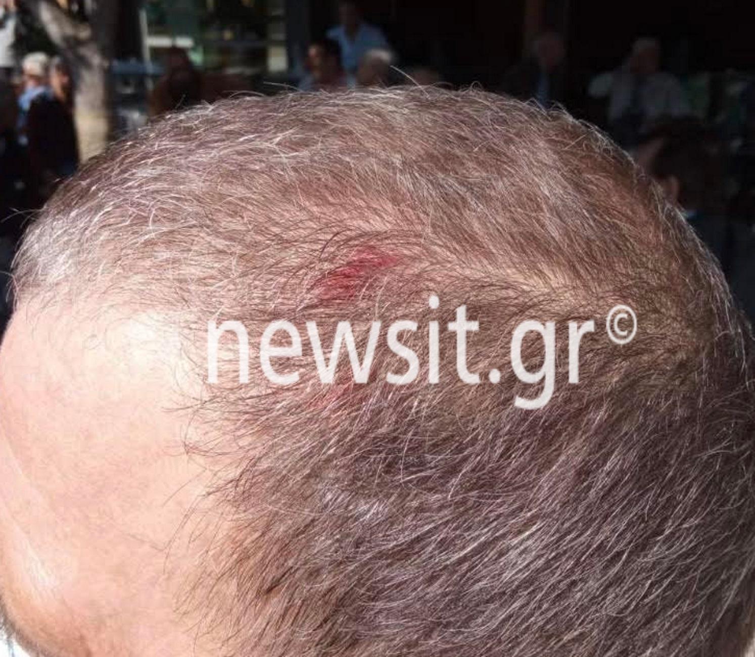 Άγρια επίθεση στη Θεσσαλονίκη σε αφισοκολλητές της ΚΝΕ